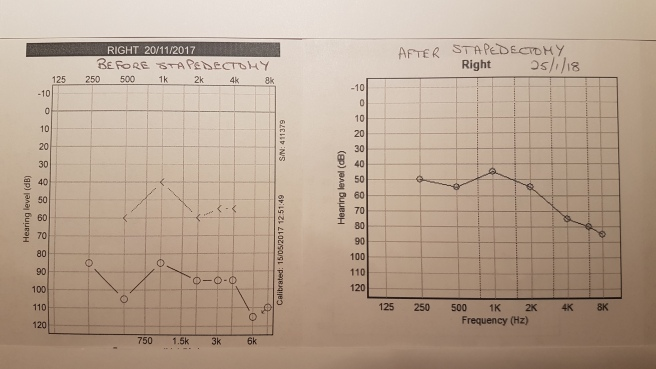 Right ear audiogram before and after